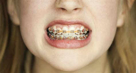 Does insurance cover orthodontic treatment? Does PeachCare Cover Braces?   Reference.com
