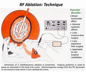 Radiofrequency thermal ablation