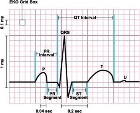 best 20 qrs complex ideas on cardiac nursing