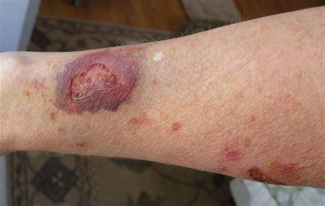 Turmeric topical psoriasis