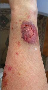 Steroid-induced Skin Atrophy