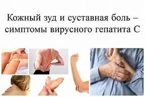Боль в суставах вирусная