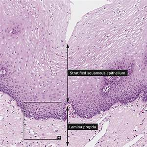 Dictionary - Normal: Esophagus - The Human Protein Atlas