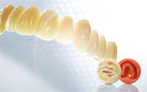fabricating complete dentures  simpler   cad