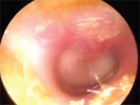 Middle Ear Infection & Middle Ear Effusion - Causes ...