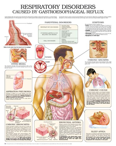 Respiratory System Disorders