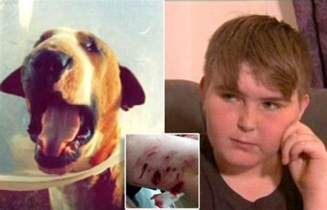 Young boy, 10, horrifically mauled by a pit bull terrier