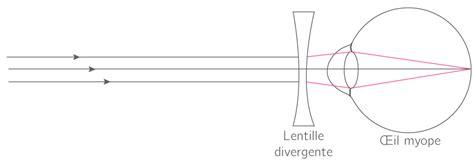 correction myopie lentille l œil accommodation d 233 fauts et corrections 1es 188   final 556de9a0c9c729.16480845