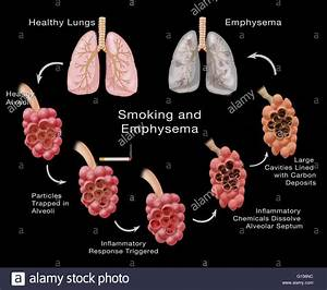 Stages Of Lung Damage Of A Smoker Leading To Emphysema  The Stock Photo  Royalty Free Image
