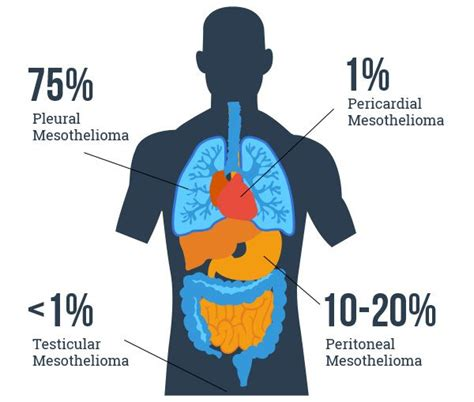 mesothelioma cancer  microbiology notes