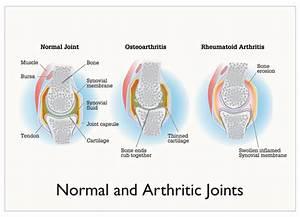 Osteoarthritis And Rheumatoid Arthritis 2012