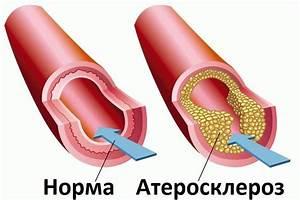 Лекарство от головокружения при остеохондрозе шеи