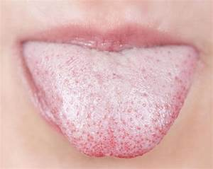 White Colored Tongue and Painful Throat: Causes and ...