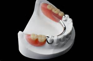 Missing Tooth Partial Denture