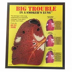 Smoker U0026 39 S Lung 3