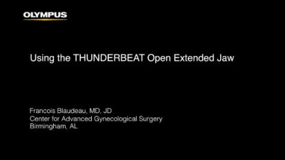 Vaginal Hysterectomy with THUNDERBEAT Open Extended Jaw ...