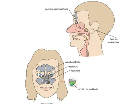 Hoofdpijn boven oor