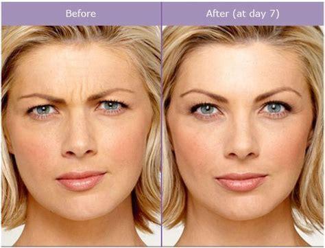 botox   regular botox treatments  soften
