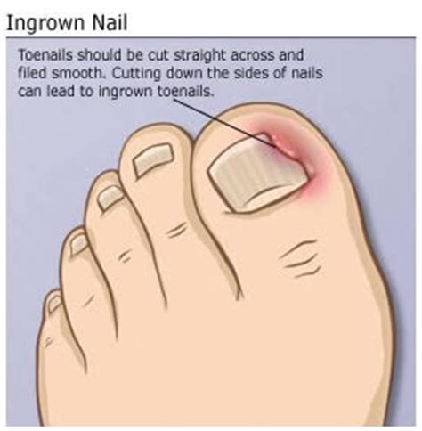 Toenail Separating From Nail Bed by Miller Foot Amp Ankle Health Care