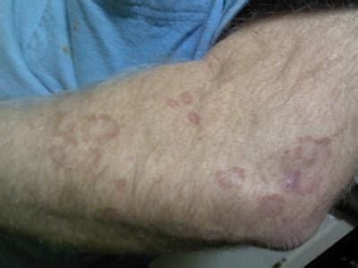 circular skin rash  ringworm