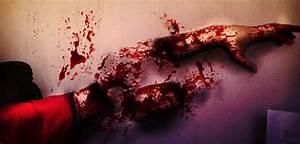 I cut off my arm! by Rides111 on DeviantArt
