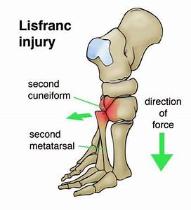 Mid Foot Injuries In Athletes  Lisfranc Injuries