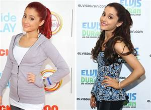 Ariana Grande Before And After Plastic Surgery Nose Job ...