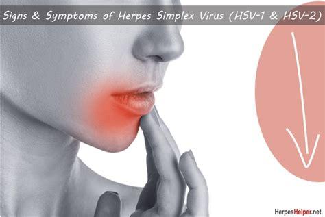Signs & Symptoms Of Herpes Simplex Virus (hsv-1 & Hsv-2