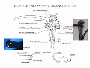 Endoscope In