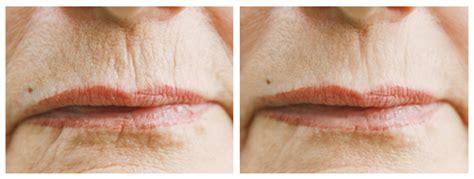 onetec® Hautanomaliebehandlung beautyfarmhannoverde