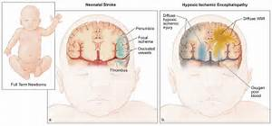 Cerebral Palsy Brain Cerebral palsy Cerebral Palsy