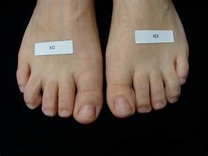 Mild Toe Fungus | www.pixshark.com - Images Galleries With ...