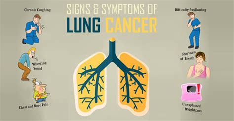 The Symptoms Of Lung Cancer In Males And Females. December 5 Signs Of Stroke. Thumb Signs. Daily 5 Signs. Sunset Signs. Temper Signs Of Stroke. Incidence Signs. Clubbing Signs. Locker Signs Of Stroke