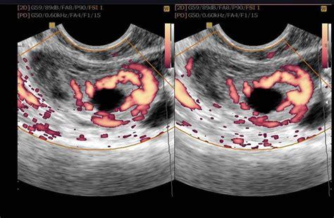 ultrasound leadership academy ultrasound  early