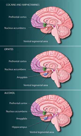 aware   brain drugs change critical parts