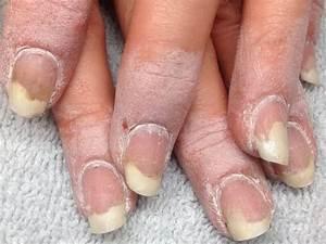 Дешевое средства от грибка ногтей на ногах