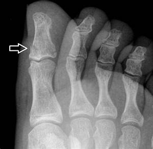 Diagnosis And Management Of Common Foot Fractures