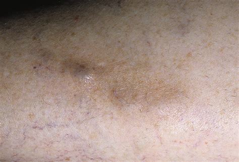 superficial phlebitis pictures   images