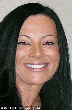 woman died  allergic reaction   loreal hair dye