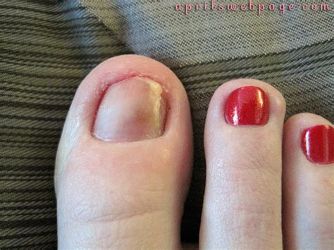 Toenail Lifting From Nail Bed by My Poor Toenail