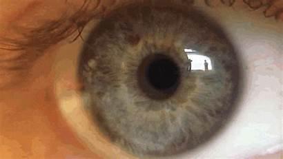 Nystagmus Eyeball Gifs Motion Giphy Animated Saccades