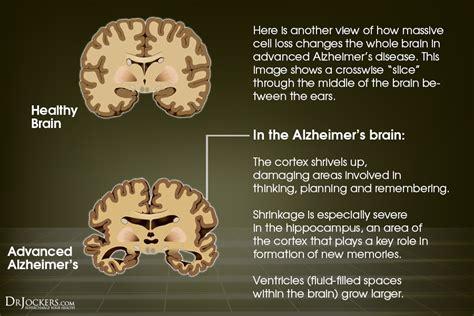 essential oils  brain health drjockerscom