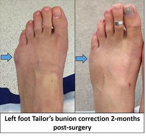 Tailors Bunion Surgery Images