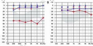 A  Preoperative Pta Showed 54 Db Conductive Hearing Loss