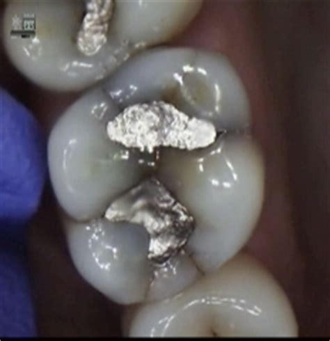 cerec crowns cerec crowns bellevue preventing tooth pain