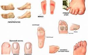 Как можно лечить грибок ногтя в домашних условиях