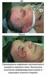 Лучшая клиника для лечения гипертонии