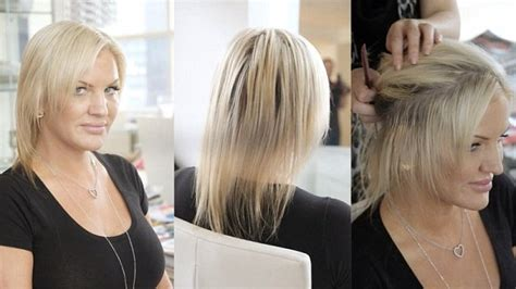 spironolactone hair loss before and hair transplants in women