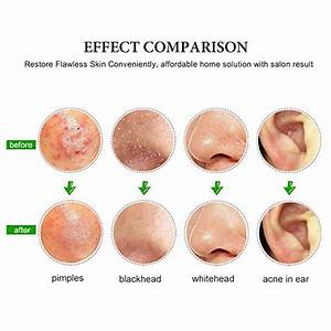 Pimple popping diagram image collections how to guide and refrence ccuart Gallery