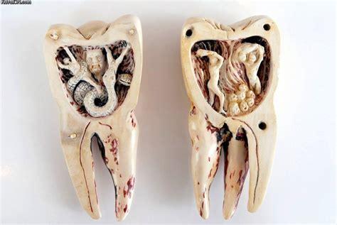 hurt teeth funny